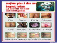 Sanjivani Piles & Skin care Hospital
